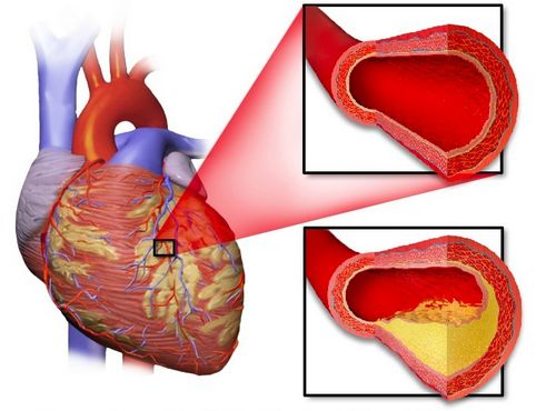 Does Selenium Reduce the Risk of Heart Disease?